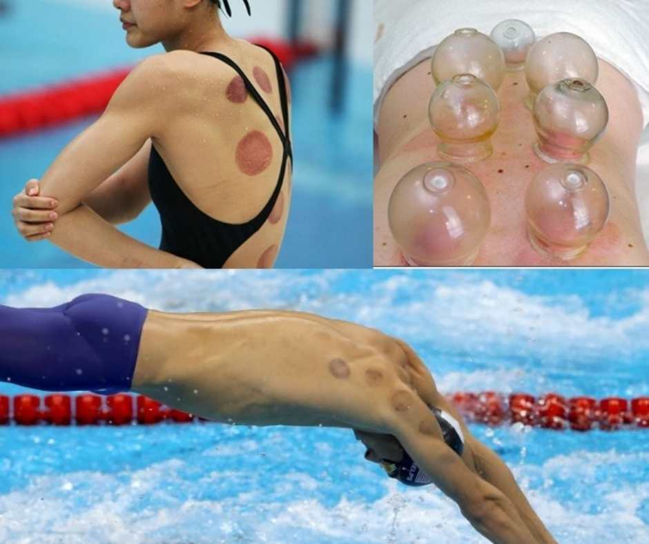 cupping_zwemmers
